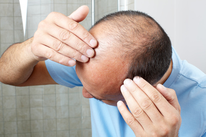 Glatzenrechner